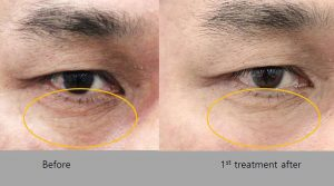 Before and After HIFU Results on eyes