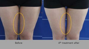Before and After HIFU Results on legs